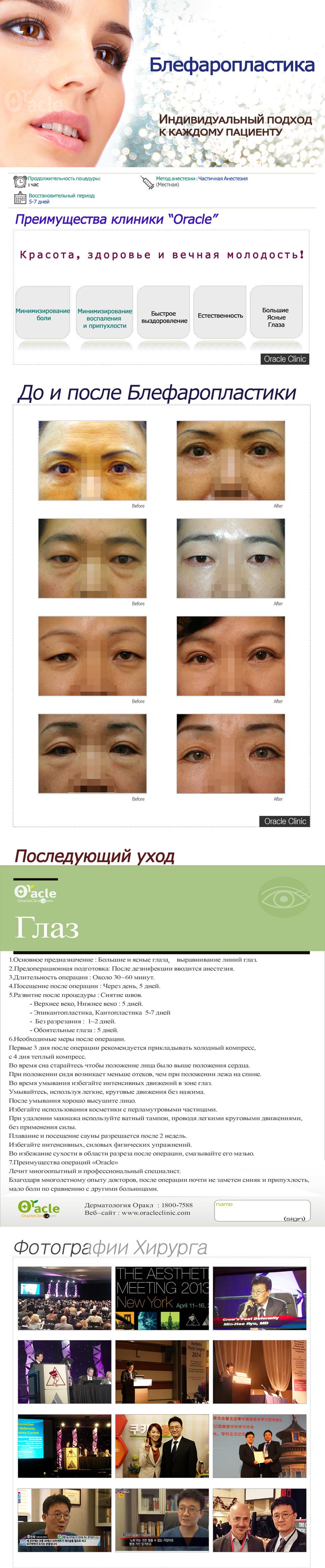 140901하안검홈피.jpg